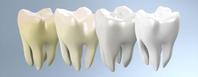 審美・美容歯科・ホワイトニング